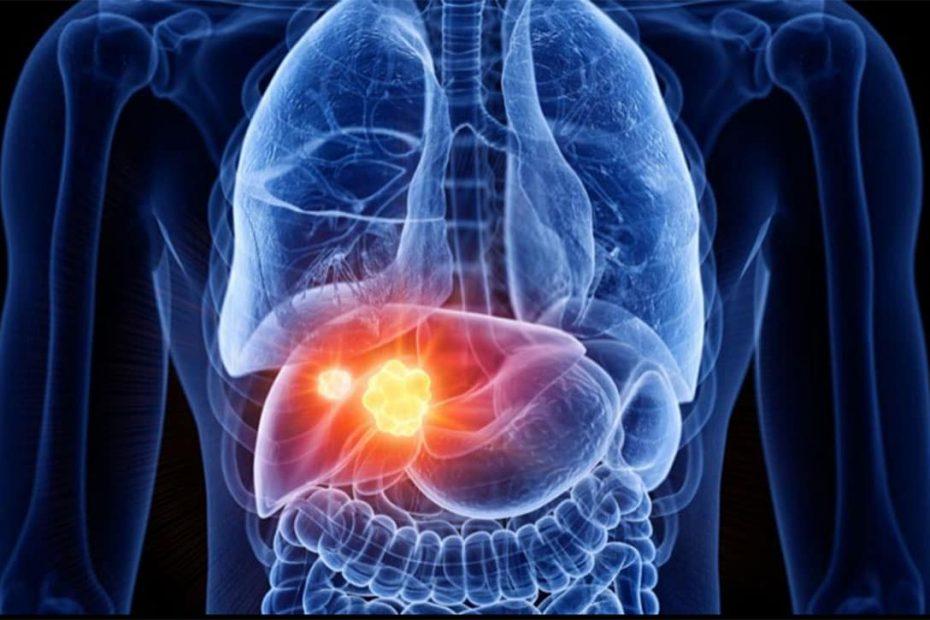 Lavaggio Epatico depurazione fegato